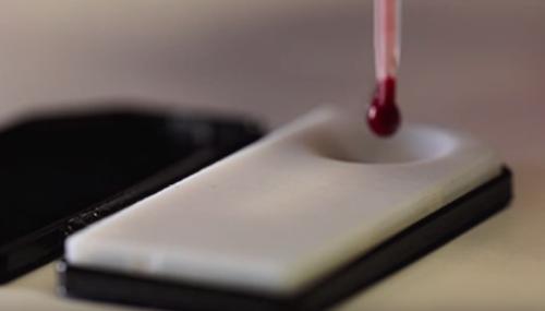 Une technique pour suivre le taux de médicaments dans le sang