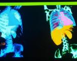 Intelligence artificielle : à Londres, des supercalculateurs à l'hôpital
