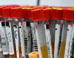 Covid-19: l'immunité, coffre-fort à plusieurs clés