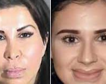 Une mère et sa fille s'improvisent chirurgiennes et tuent une femme